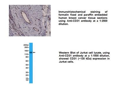 Anti- CD31 (PECAM-1) Rabbit Monoclonal Antibody