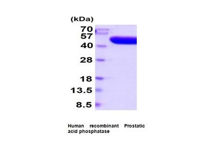 Prostatic acid phosphatase, human recombinant