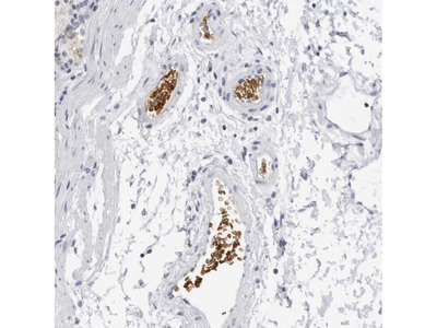 Anti-EPB41 Antibody