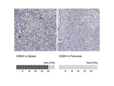 Anti-GZMH Antibody