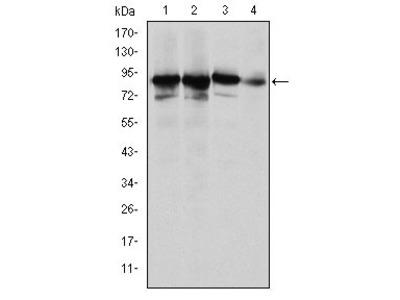 Anti-Ku-80 antibody