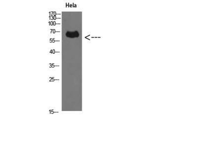 Anti-Perforin 1 antibody (STJ98623)