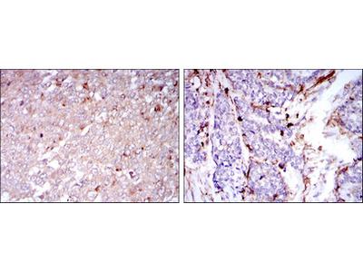 Anti-CD133 antibody