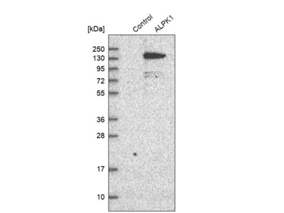 Anti-ALPK1 Antibody