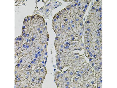 Anti-CA9 antibody