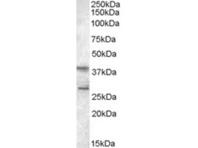 Goat Polyclonal Antibody against SCAP2 / PRAP