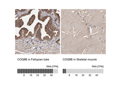 Anti-COQ8B Antibody