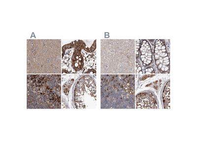 Anti-ASCC3 Antibody