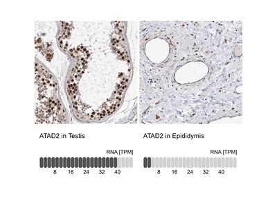 Anti-ATAD2 Antibody