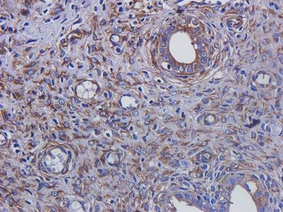Tubulin beta 3 antibody