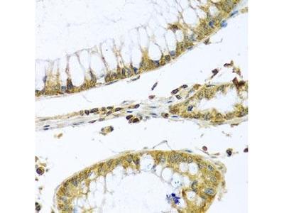 PMPCB antibody