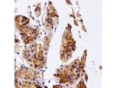 NUDT15 antibody
