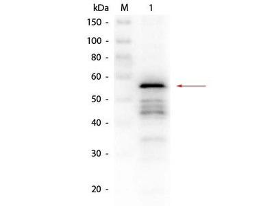 Aldehyde Dehydrogenase antibody