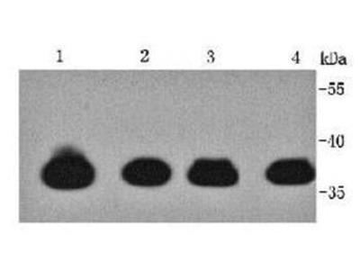 TTNNT2 antibody