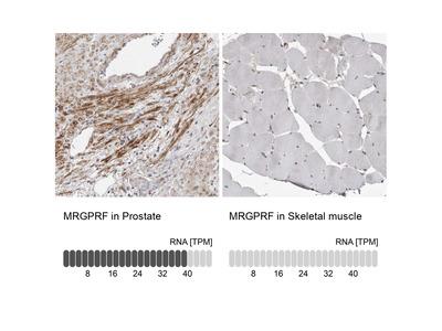 Anti-MRGPRF Antibody