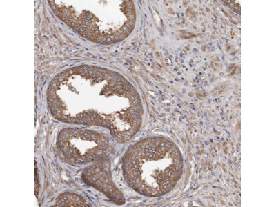 Anti-STEAP2 Antibody