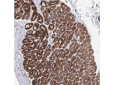 Anti-LCLAT1 Antibody