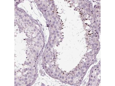 Anti-LRRIQ3 Antibody