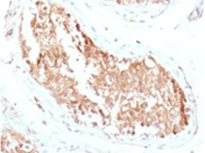ALDH1 antibody