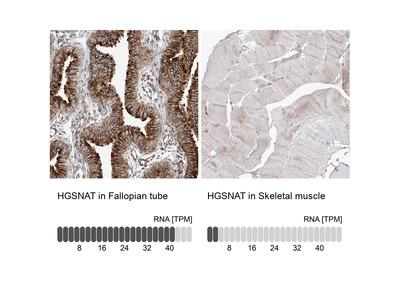 Anti-HGSNAT Antibody