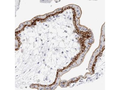Anti-SLC19A1 Antibody