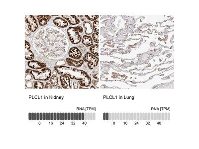 Anti-PLCL1 Antibody