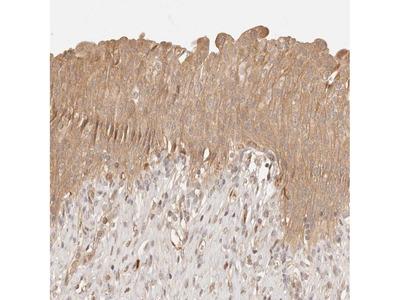 Anti-PHLDA3 Antibody