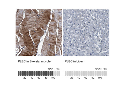 Anti-PLEC Antibody