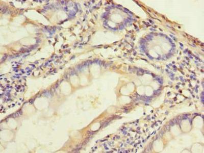 SLC38A2 antibody