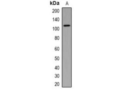 TSC1 antibody