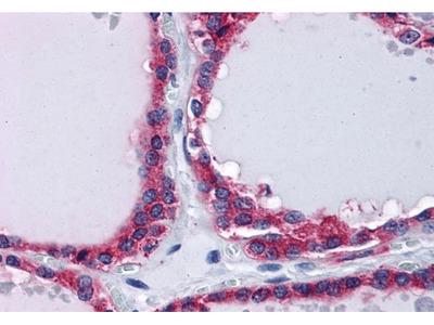 PLIN3 antibody