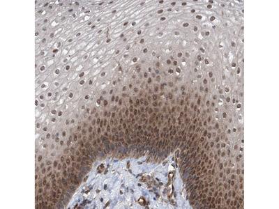 Anti-ZNF655 Antibody