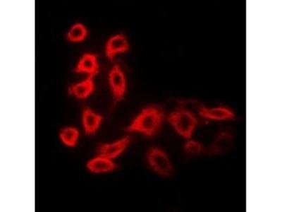 CYP51A1 antibody