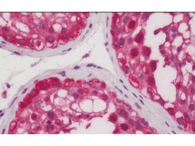 PRKCZ antibody
