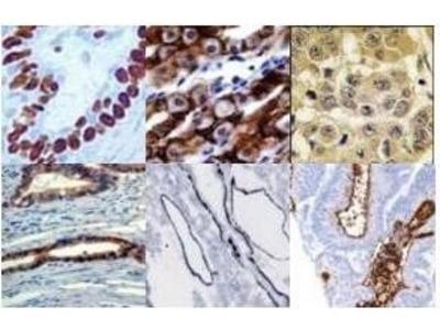 Blocking Buffer For Immunohistochemistry Serum And Azide Free