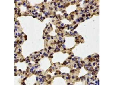 FBXW11 antibody