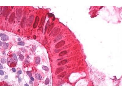 NIPBL antibody