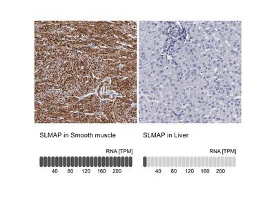 Anti-SLMAP Antibody