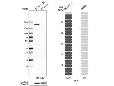 Anti-ZEB2 Antibody
