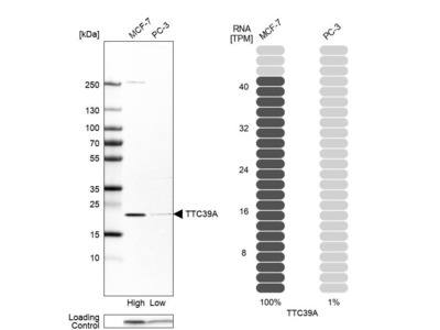 Anti-TTC39A Antibody