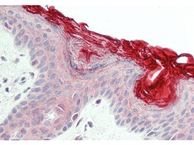 PERP antibody