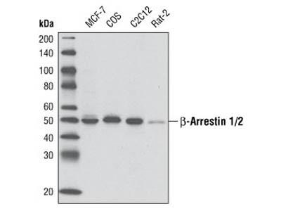 β-Arrestin 1/2 (D24H9) Rabbit mAb