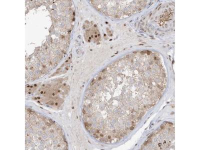 Anti-ZCWPW2 Antibody