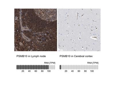 Anti-PSMB10 Antibody