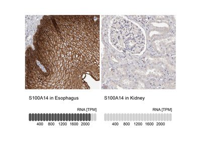 Anti-S100A14 Antibody