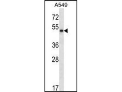 PNLIP antibody