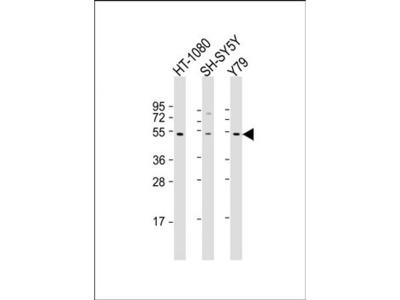 ZNF513 antibody