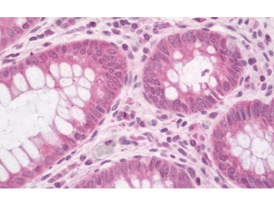 LRRC40 antibody