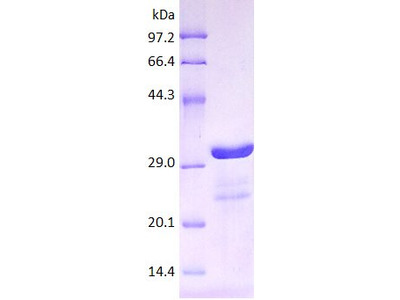 MCP1 protein