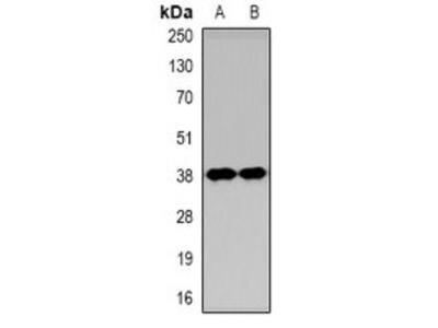 KIM1 antibody